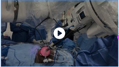 Liver Transplant Pune