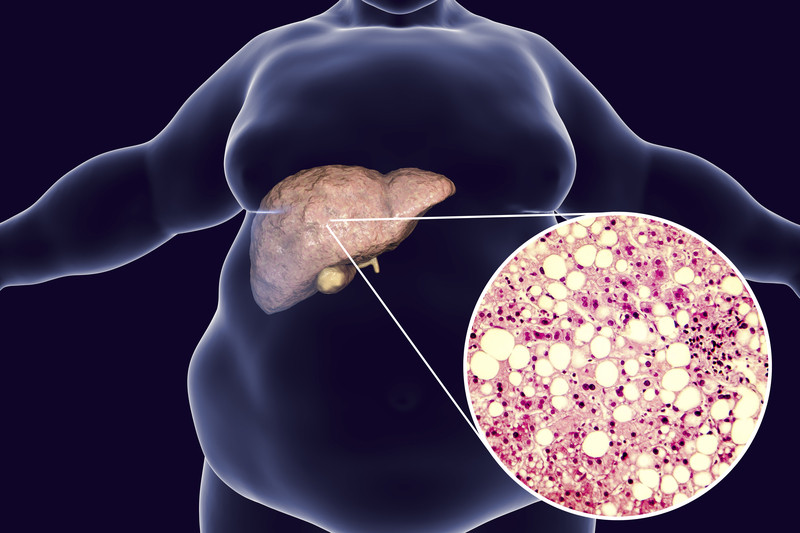 How does obesity lead to fatty liver disease?