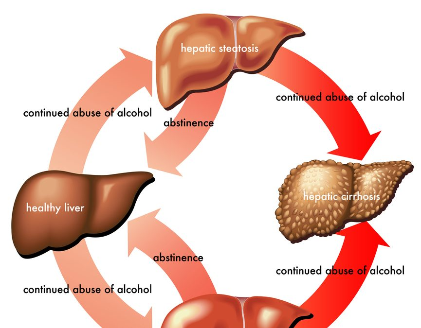What is meant by alcoholic hepatitis?