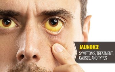 How to recover weakness after jaundice