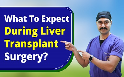 What to Expect During Liver Transplant Surgery?