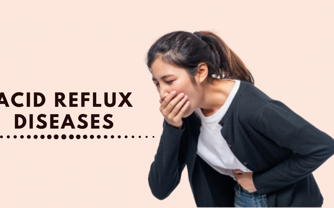 All You Need To Know About Acid Reflux (GERD)