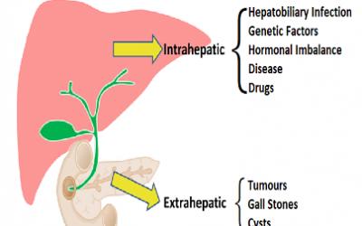 Cholestatic Liver Disease