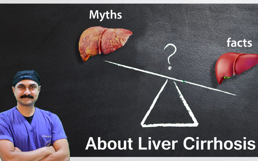 Myths & Facts About Liver Cirrhosis | Dr. Bipin Vibhute