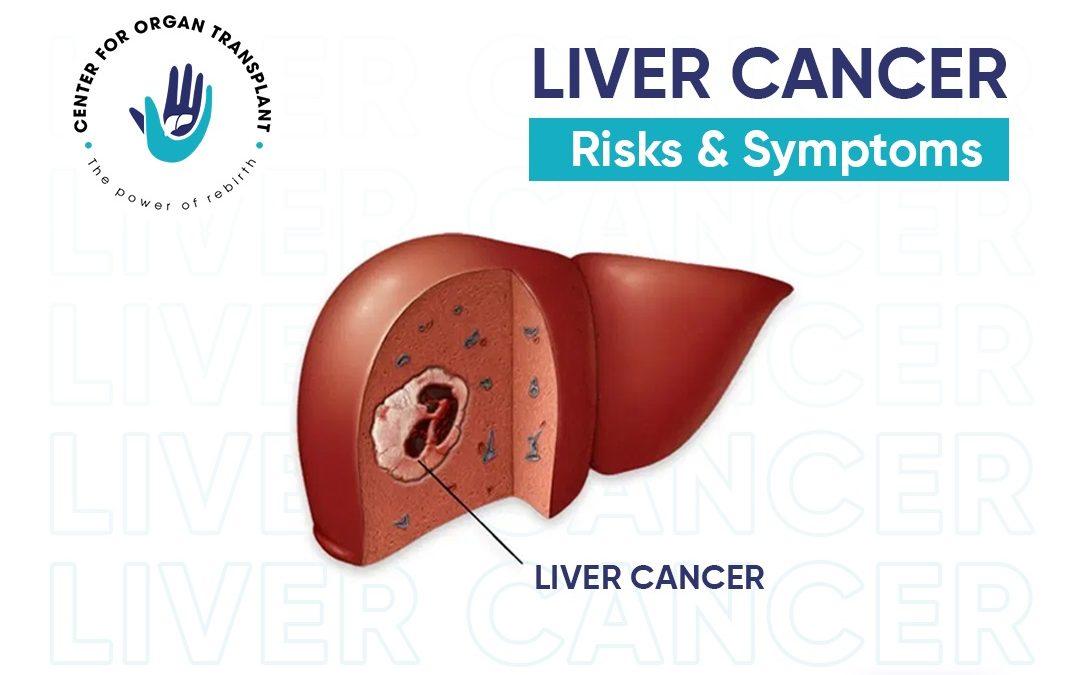 Liver Cancer – Its Risks & Symptoms