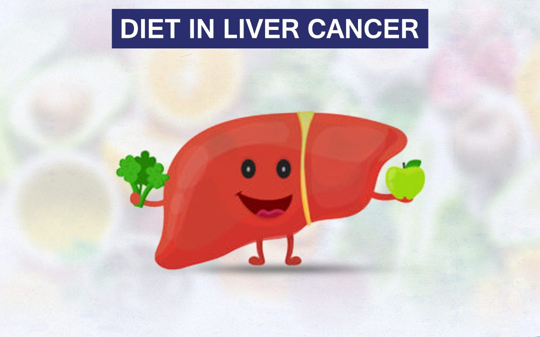 Diet in Liver Cancer