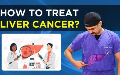 यकृत कर्करोग (लिवर की बीमारी) LIVER CANCER SURGICAL TREATMENT / HINDI