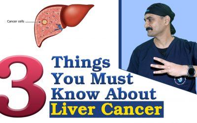 लिवर कैंसर के बारे में 3 बातें जो आपको जरूर जाननी चाहिए