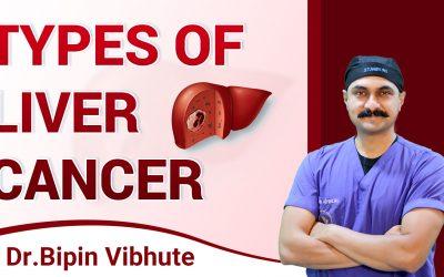 लिवर कैंसर क्या हैं । Liver Cancer Types Hindi: लिवर कैंसर के लक्षण, कारण और बचाव