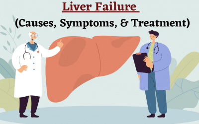 Liver Failure – It's Causes, Symptoms and Treatment