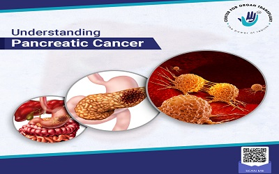 Understanding Pancreatic Cancers